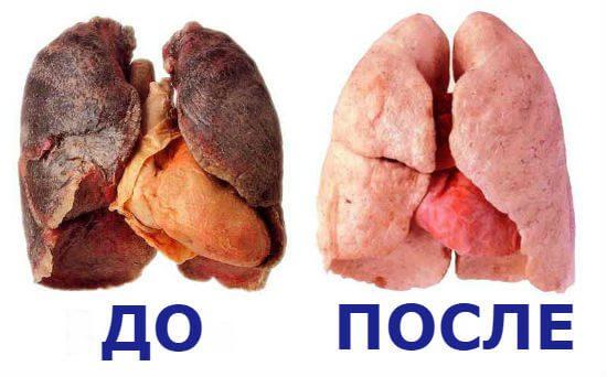 Легені людини до та після куріння